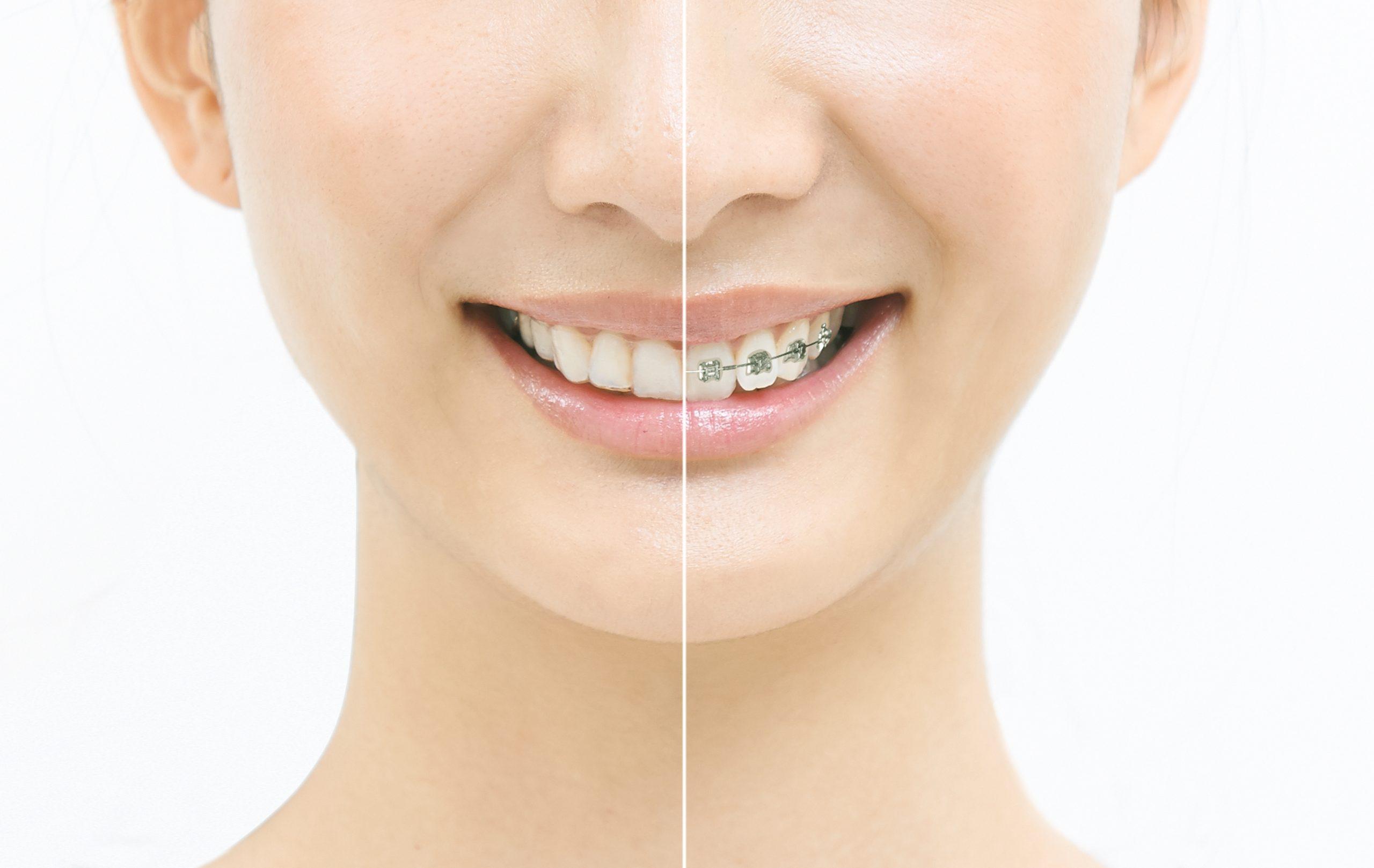 矯正装置を装着し、歯の移動を開始