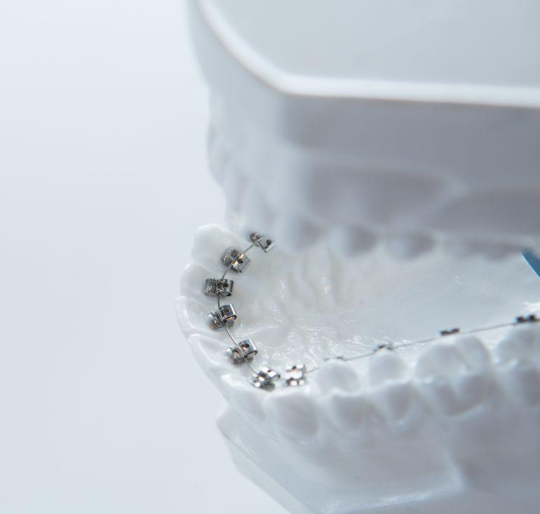 歯の裏側につける矯正(舌側矯正) 裏側矯正