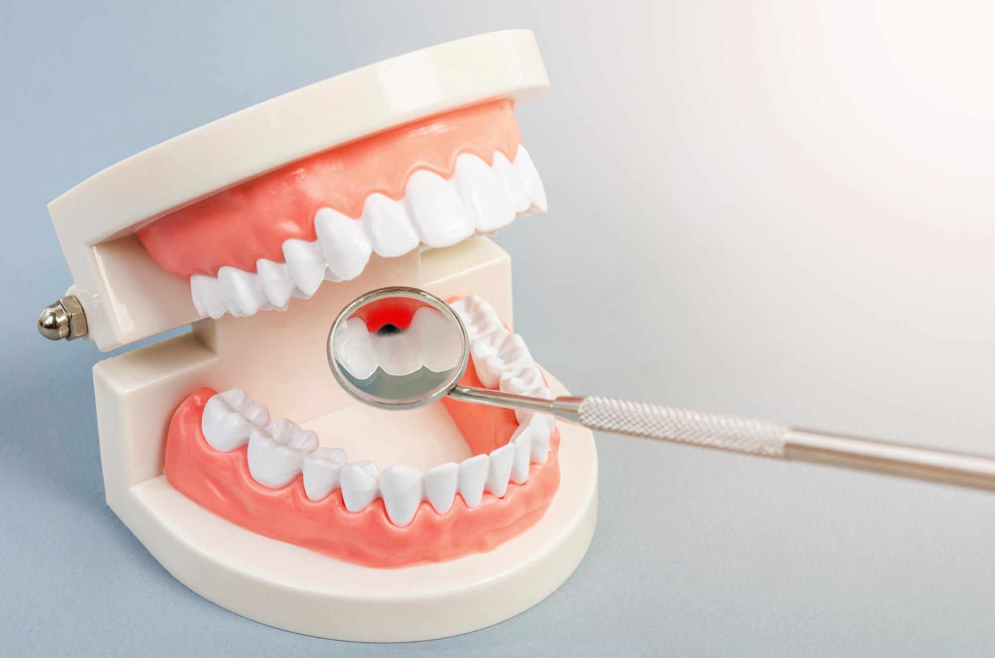 抜歯が可能